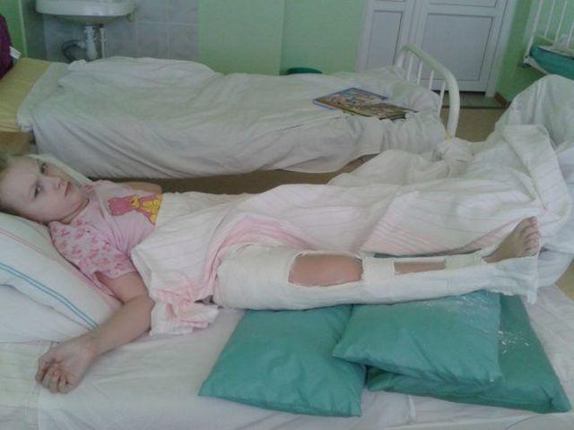 Перелом бедра со смещением у детей: лечение, последствия и реабилитация