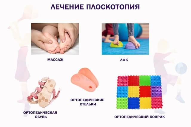 Как лечить плоскостопие у детей различного возраста