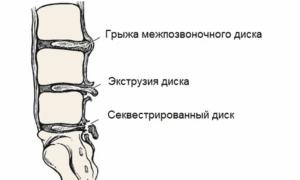 Экструзия дисков позвоночника: что это такое и как ее лечить