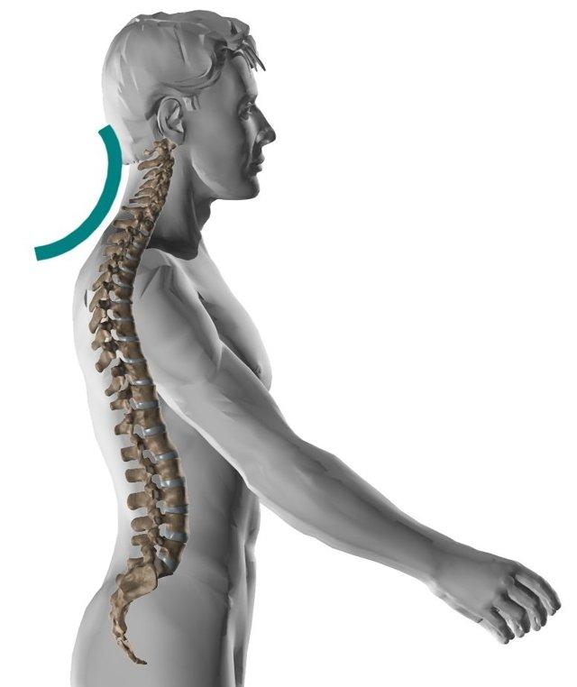 Нарушение статики шейного отдела позвоночника: что это такое, симптомы и признаки