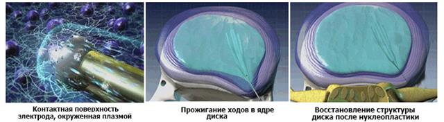 Холодноплазменная нуклеопластика межпозвонковых дисков: отзывы об эффективности, стоимость, метод лечения холодной плазмой