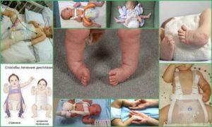 Лечение дисплазии тазобедренных суставов у детей: операция, остеопатия, плавание, стремена Павлика, широкое пеленание