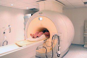 Остеохондроз шейно-грудного отдела позвоночника: признаки, симптомы, лечение, код по МКБ-10, упражнения в домашних условиях, ЛФК, зарядка, медикаментозные препараты