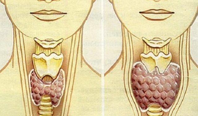 Размеры щитовидной железы: таблица нормы у женщин и мужчин, нормальный объем щитовидки по УЗИ