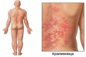 Аллергия на финики: причины и симптомы
