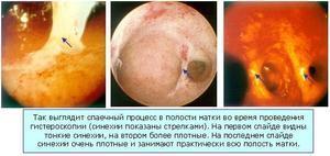 Послеоперационные спайки в брюшной полости: симптомы, лечение, последствия и профилактика