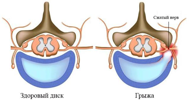 Фораминальная грыжа: задняя, левосторонняя, правосторонняя, экстрафораминальная, парамедиальная