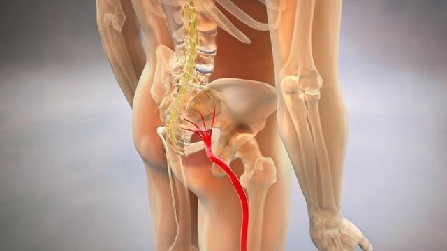 Лечение защемления седалищного нерва: к какому врачу обращаться, методы терапии и прогноз