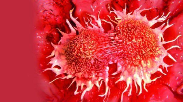 Опухоли и метастазы в лимфоузлах брюшной полости: признаки, диагностика, лечение и прогноз