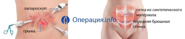 Операция по удалению грыжи живота: противопоказания, подготовка, виды и стоимость