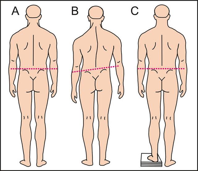 Лечение при перекосе таза: упражнения, массаж, остеопатия, ношение ортопедических стелек