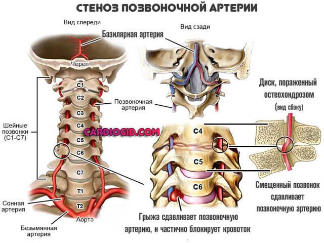 Синдром позвоночной артерии: симптомы, лечение, фенестрация, прогнозы жизни, коды по МКБ-10, клинические рекомендации
