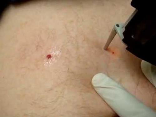 Шишка на спине около лопатки под кожей не болит или болит при надавливании – что это может быть