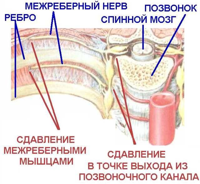 Припухлость под левой грудью у женщин, онемение и холод в грудине