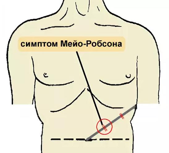 Симптом Мейо - Робсона: техника выполнения и точность метода