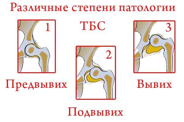 Незрелость тазобедренных суставов у новорожденных: признаки, лечение, последствия и профилактика
