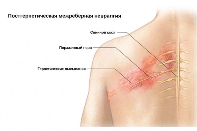 Симптомы межреберной невралгии грудного отдела