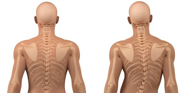 Протрузия шейного отдела позвоночника: симптомы и лечение, признаки, опасность и последствия