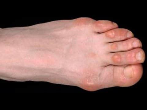 Как убрать мозоли на пальцах ног сверху: размягчение и удаление