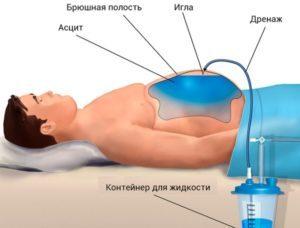 Лапароцентез брюшной полости при асците: показания, техника выполнения и последствия
