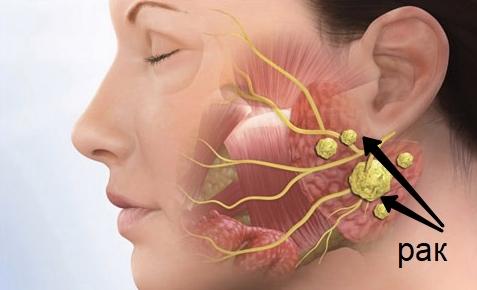 Опухоль на шее: симптомы опухоли шейного отдела позвоночника и мягких тканей с правой или левой стороны, причины новообразований