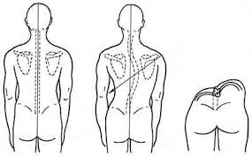 Что такое правосторонний сколиоз грудного, поясничного и грудопоясничного отдела позвоночника, 1,2 и 3 степени