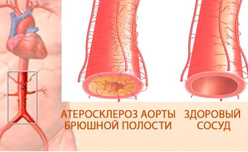 Ишемический колит: симптомы, лечение, диагностика и профилактика