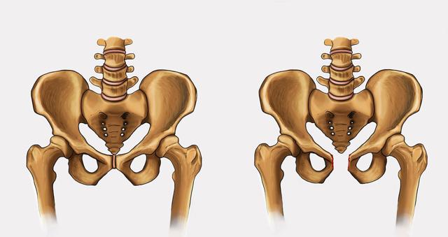 Лобковый симфиз у мужчин и женщин: анатомическое строение, норма размеров, расхождение лонного сочленения при беременности, фото