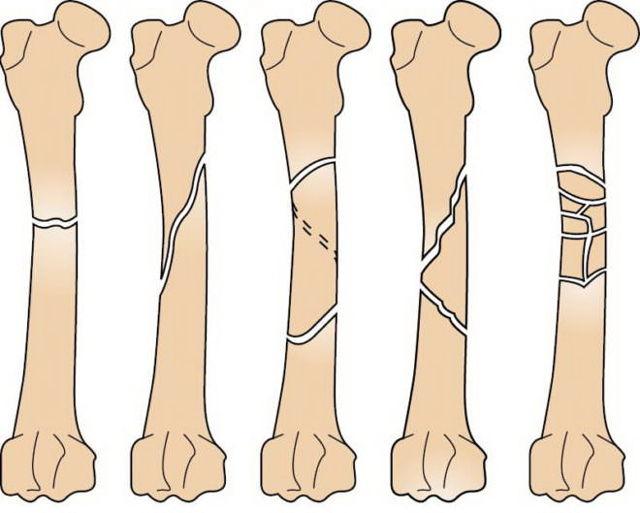 Операция при переломе бедренной кости со смещением: виды, реабилитация и прогноз