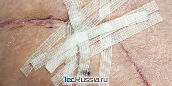 Шрам после операции на животе: способы избавления и профилактические меры