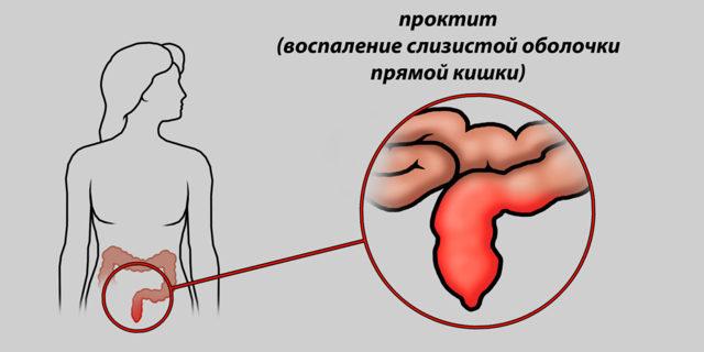 Лучевой проктит: симптомы, диагностика и методы лечения