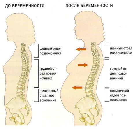 Хондроз и остеохондроз при беременности: лечение, симптомы, обострение и отзывы