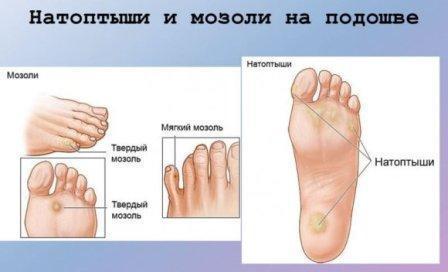 Как убрать натоптыши на ногах в домашних условиях