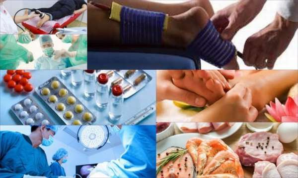 Энхондрома бедренной кости: причины, симптомы, диагностика и лечение