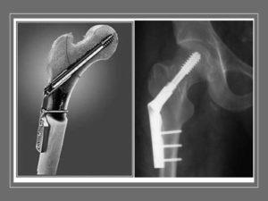 Остеосинтез шейки бедра: способы, техника операции, реабилитация и стоимость