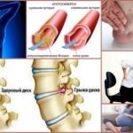 Жжение и онемение в бедре правой и левой ноги: причины и лечение