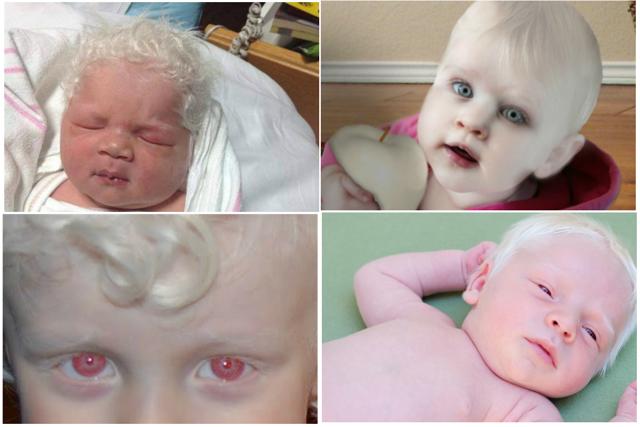 Пятна на шее у ребенка: красные точки у новорожденного, белые, темные пятна у детей, коричневые у подростков