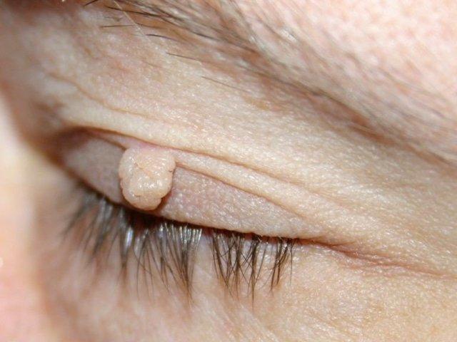 Фиброма мягких тканей бедра: причины, виды, лечение и прогноз
