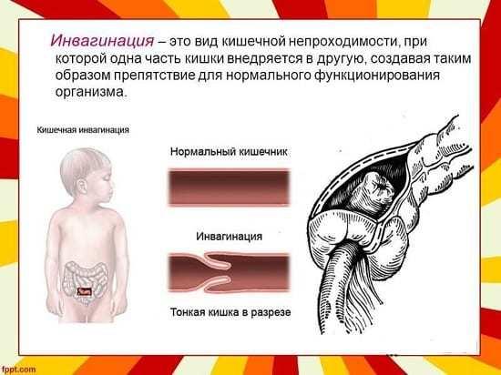 Инвагинация кишечника: причины, симптомы, диагностика и методы лечения