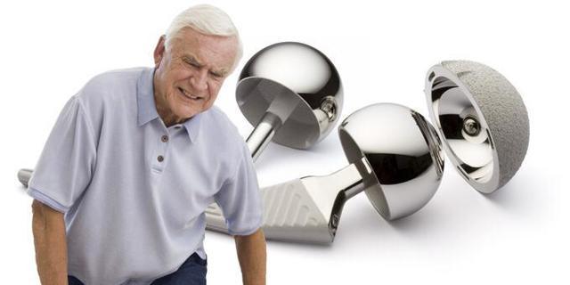 Инвалидность при переломе шейки бедра: установление группы и процедура оформления