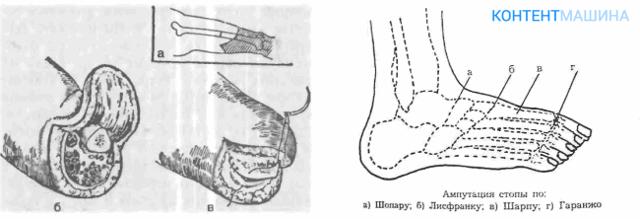 Ампутация бедра: подготовка к процедуре, различные техники и ход операции