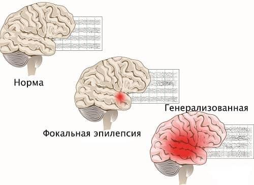 Причины возникновения эпилепсии и провоцирующие факторы