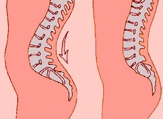 Лордоз позвоночника: симптомы, причины и методы исправления
