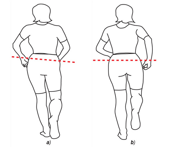 Артрит бедренного сустава: причины развития, классификация, симптомы и лечение