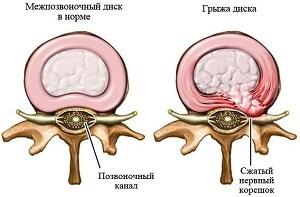Мануальная терапия и остеопатия при грыже позвоночника: отзывы, можно ли вылечить грыжу, сколько сеансов необходимо, что делает мануальный терапевт и остеопат