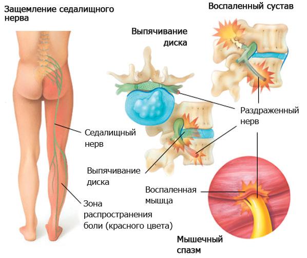Причины защемления нерва в ноге, симптомы и методы лечения