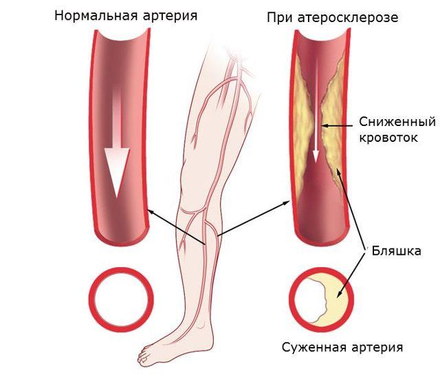Причины боли в ноге от бедра до стопы при ходьбе и в состоянии покоя