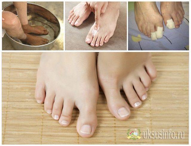 Яйцо в уксусе от грибка ногтей: рецепты для лечения заболевания
