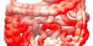 Лечение болезни Крона народными средствами: виды и рецепты