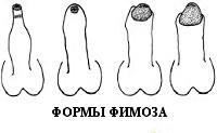Фимоз у мужчин - сужение крайней плоти, лечение и причины, код по МКБ 10
